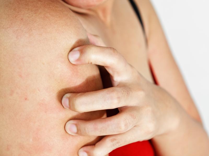 Причины если чешется кожа но сыпи нет
