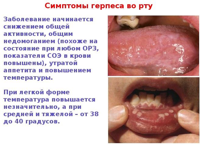 Инфекции от герпеса на губах