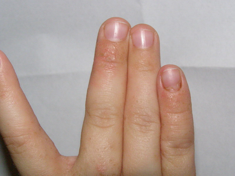 Волдыри на пальцах рук возле ногтей