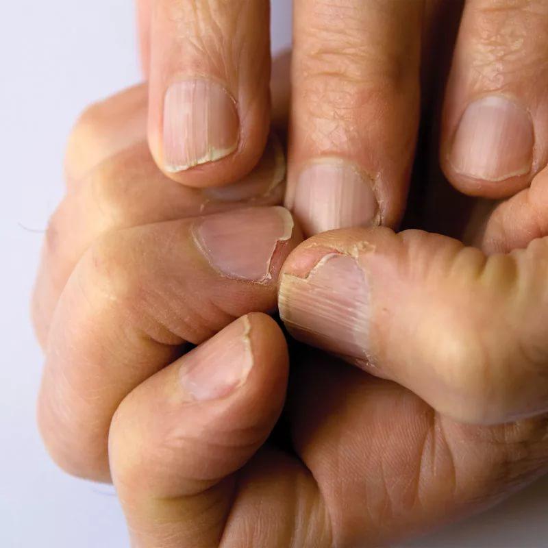 Ногти с грибком на руках