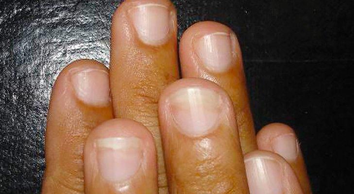 Фото ногтей зараженных грибком