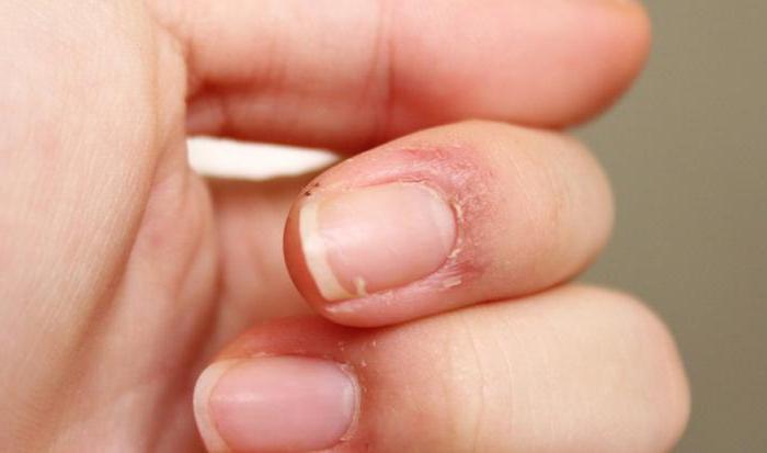 Трескаться кожа около ногтей на руках