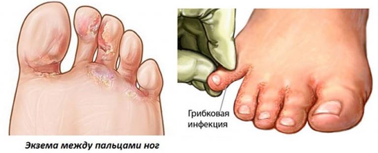 Почему между пальцами ног чешется