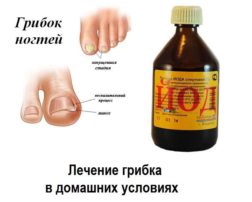 Лечение грибка ногтя и