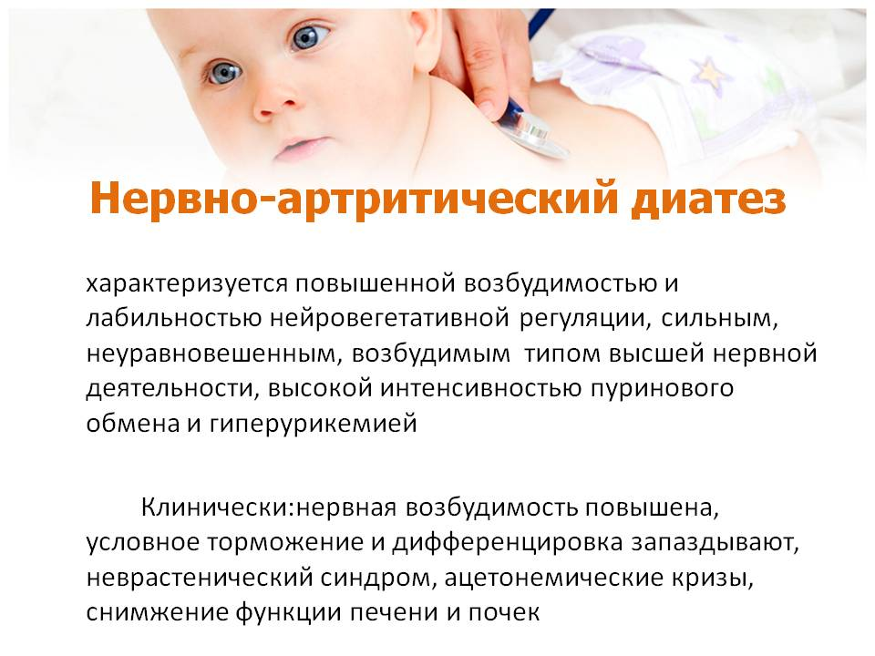 128Диатез у детей как лечить