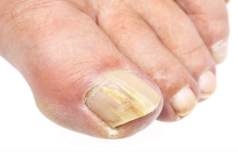 Грибок ногтей на ногтях