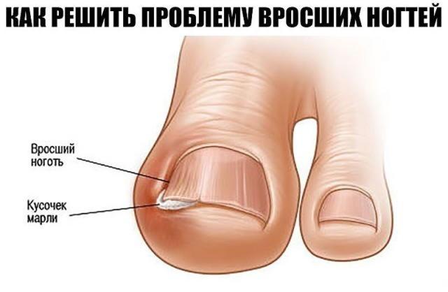 Вросшие ногти у ребенка на ногах и