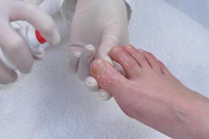 Синегнойная палочка на ногтях