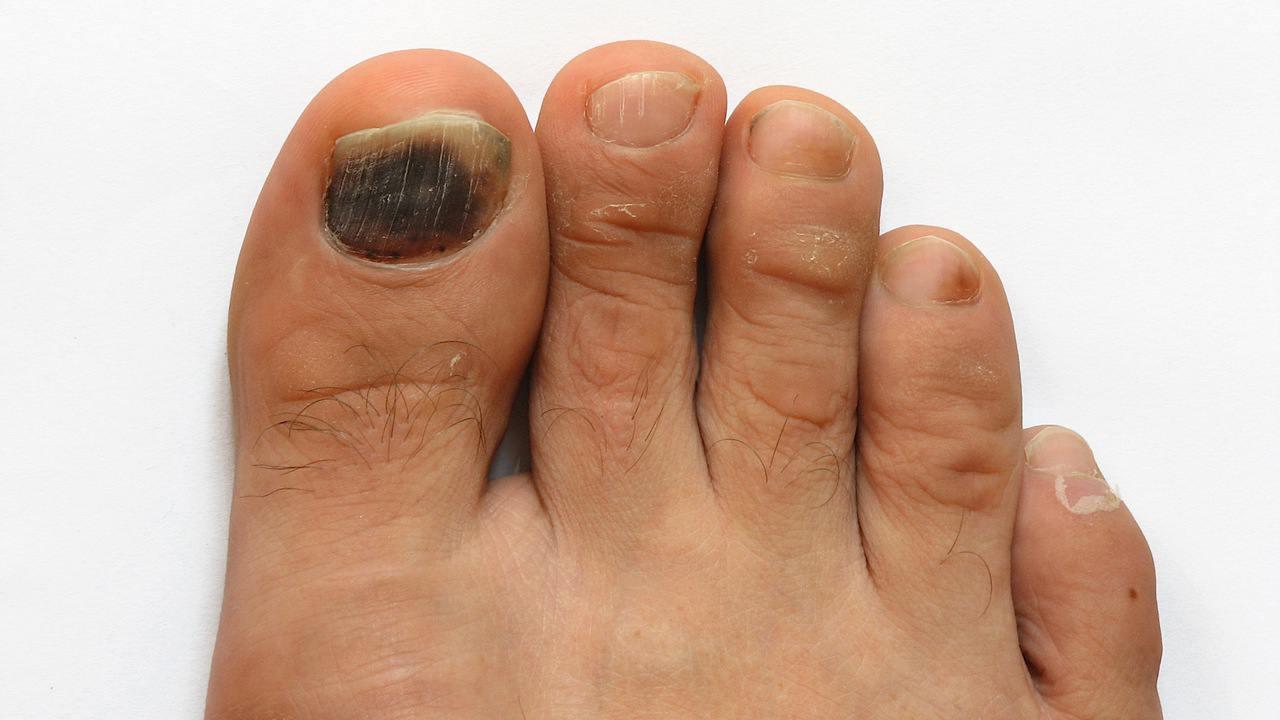 Грибок ногтя на пальце руки