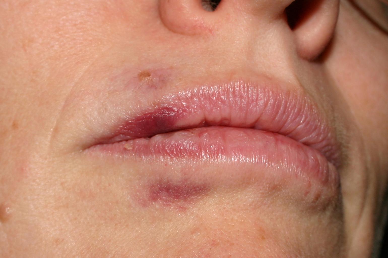 После удаления зуба - симптомы (нормальные)