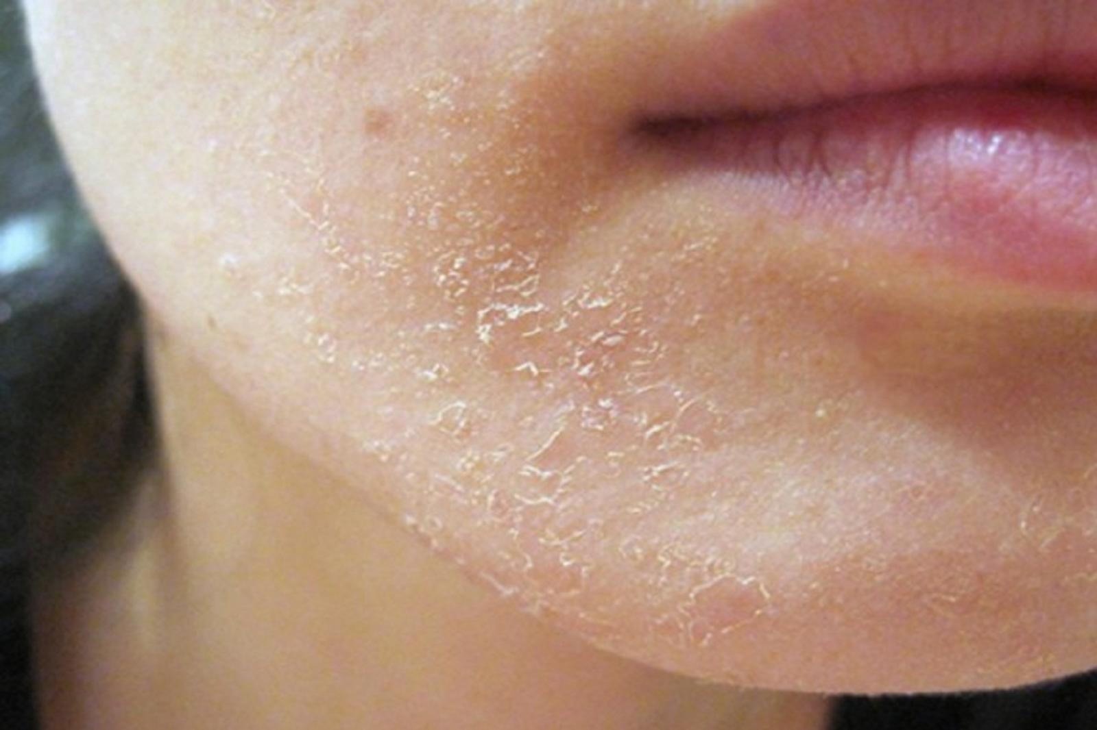 Что делать если сильно сушит кожу лица