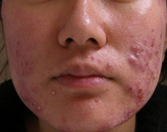 демодекоз на лице