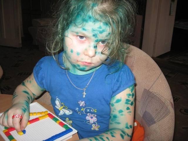 украшение зелёнкой ребенка