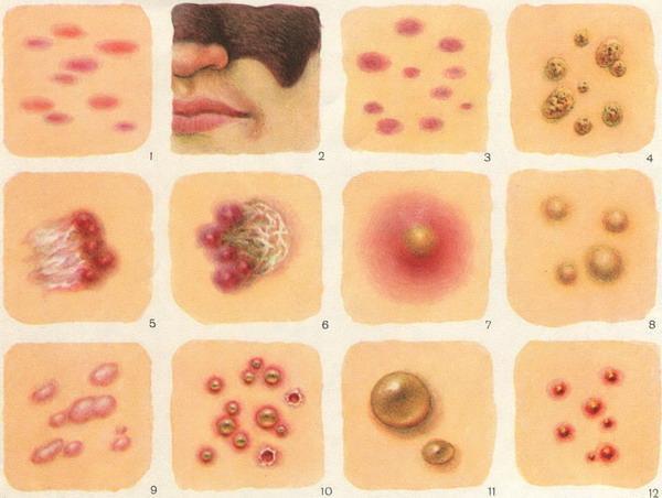 формы кожных высыпаний
