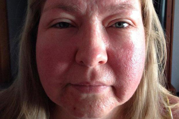 аллергия на спиртное фото