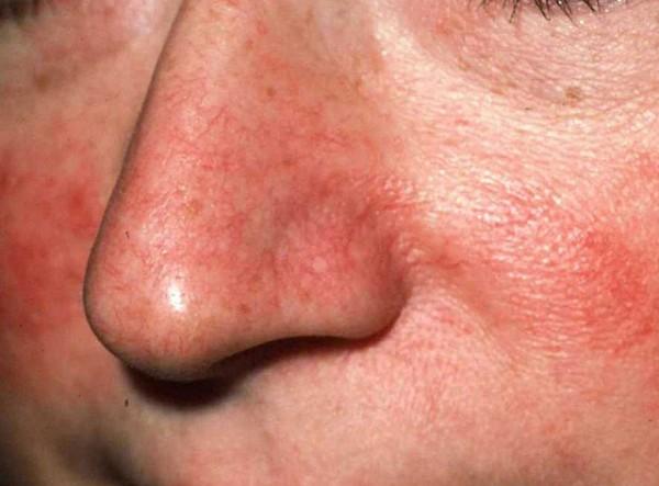 заболевания кожи лица шеи thumbnail
