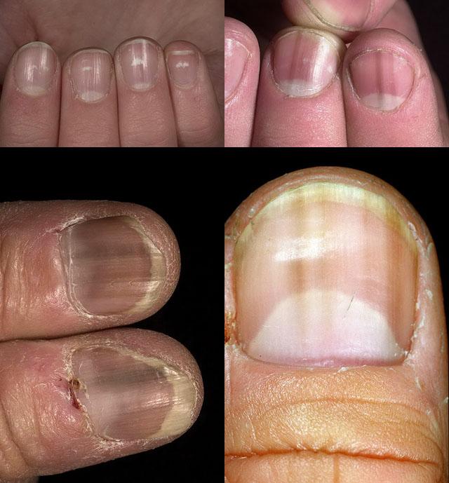 Нетрадиционная лечение псориаз