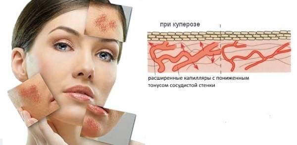 механизм формирования купероза