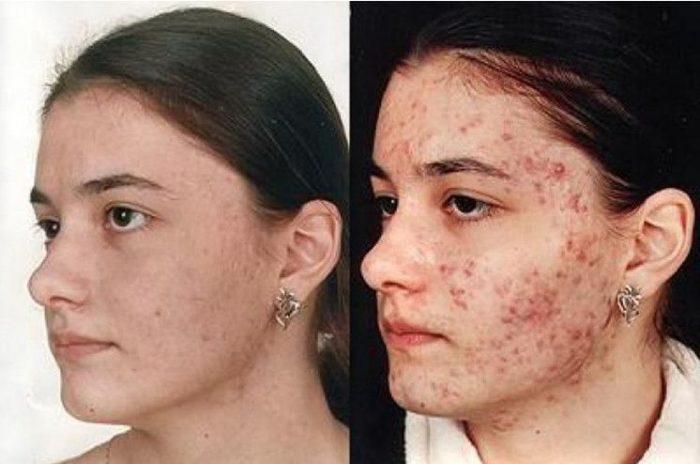 симптомы болезни на лице