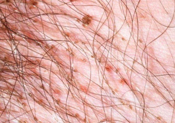 признаки и симптомы лобкового педикулеза