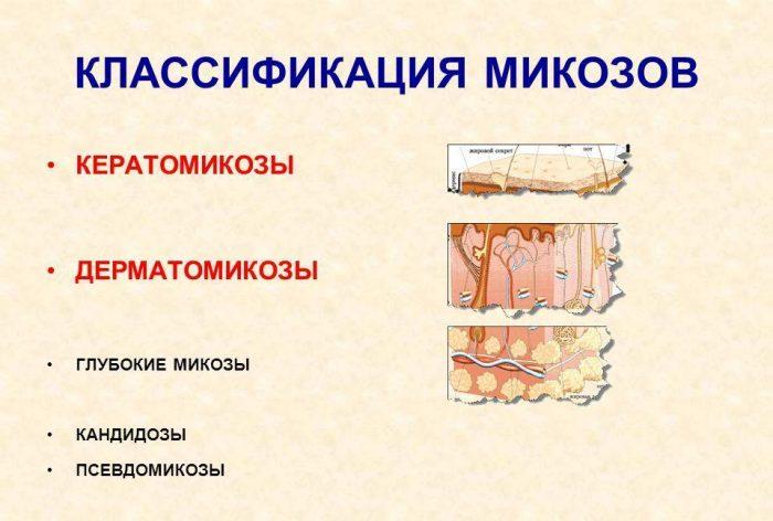 виды грибковых заболеваний