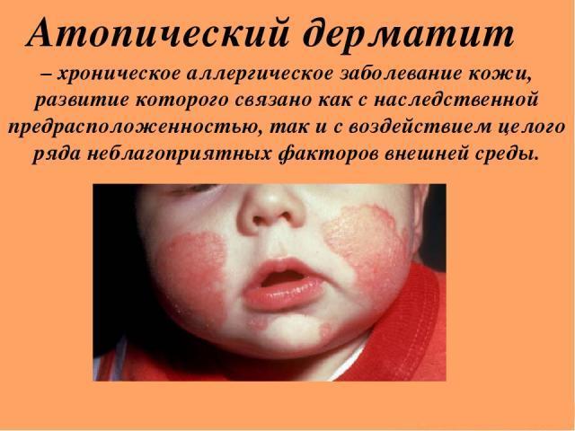 причины возникновения атопического дерматита