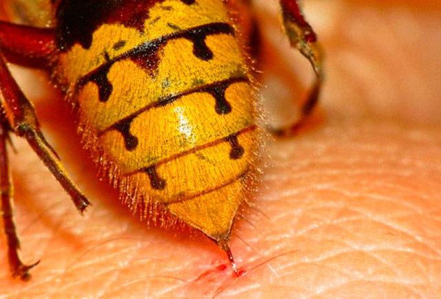 последствия укуса осы