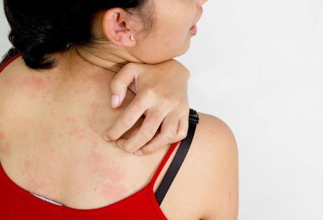 аллергическая сыпь на кожном покрове