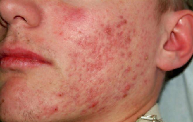 Герпес на лице: фото, лечение и симптомы