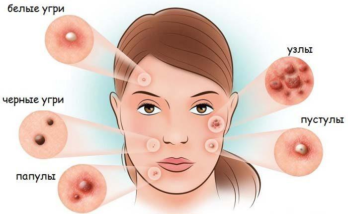 Болезнь кожи лица это thumbnail