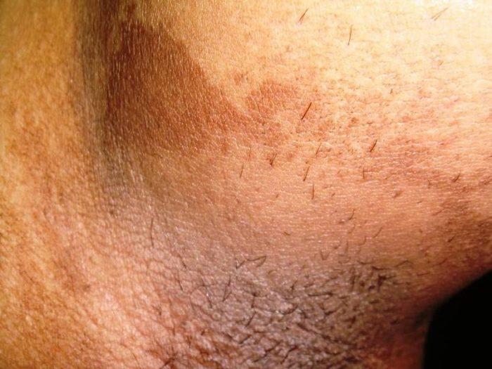 эритразма – патология, поражающая эпидермис