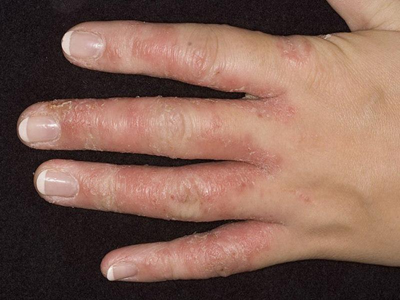 Между пальцами рук чешется и зудит до локтя: причины зуда