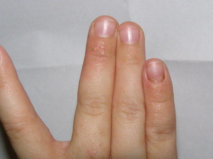зуд между пальцев рук