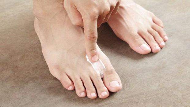 Лечение споры патогенного грибка ногтей