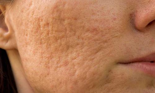 сложненная бактериальной инфекцией сыпь