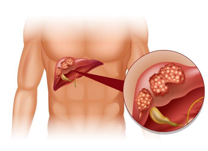 гемангиома внутренних органов