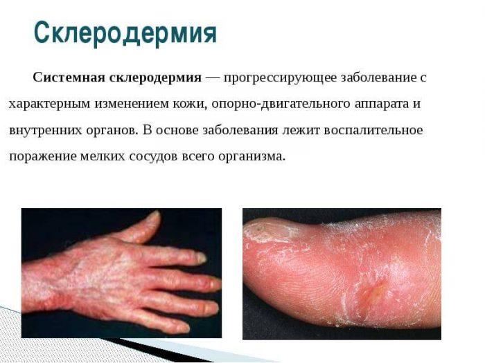 заболевание с изменением кожи