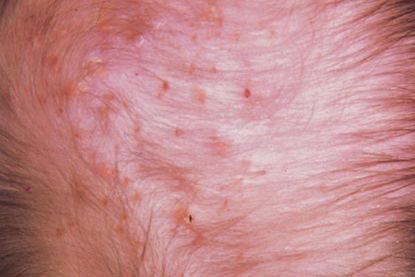 заболевание, поражающее волосяные фолликулы
