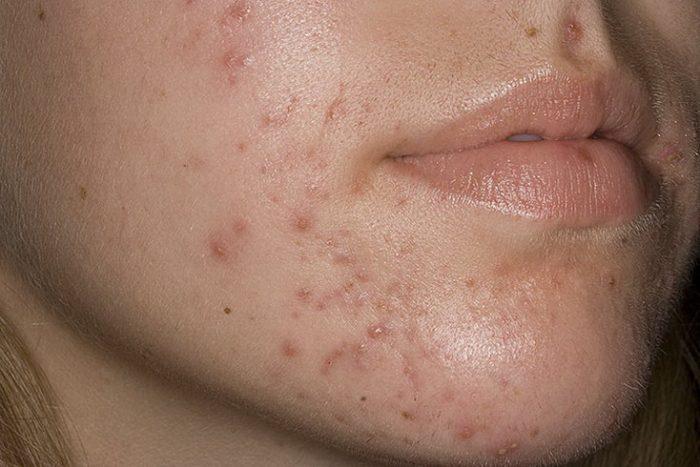 виды заболевание кожи лица thumbnail