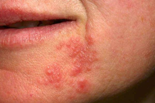 виды дерматита