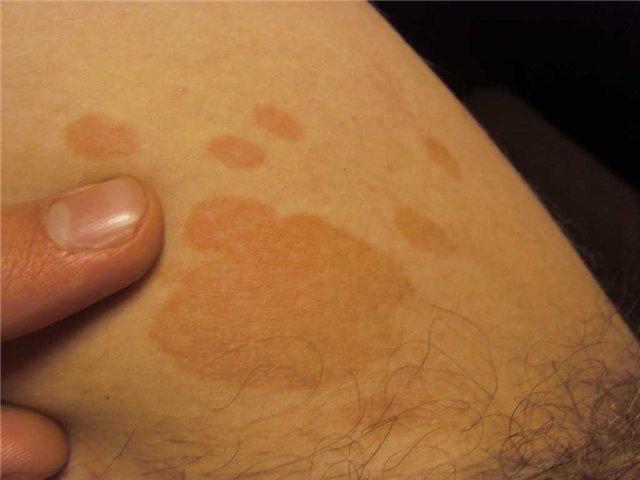 потемнения кожи в паху