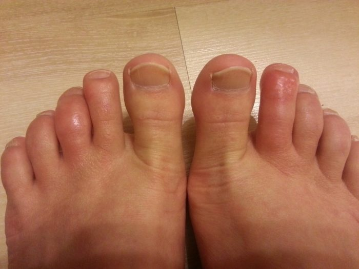 причины зуда между пальцами