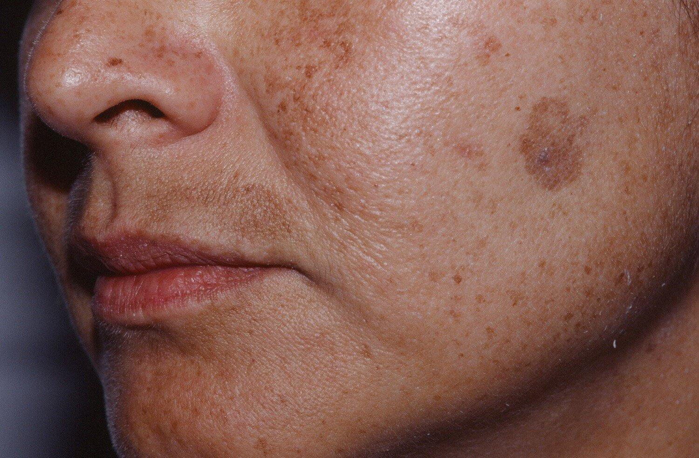 Старческие пятна на коже: как избавиться?