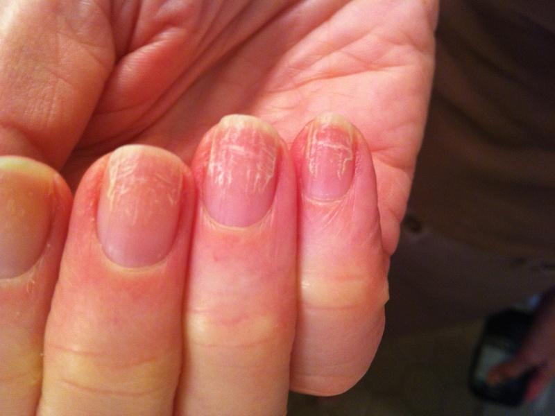 Средство от грибка ногтей которое можно беременным