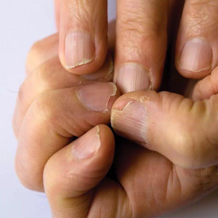 этиология грибкового поражения рук