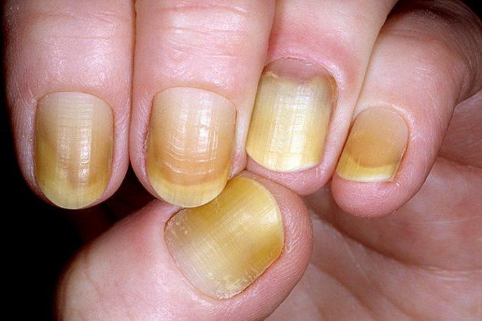 проявления запущенного грибка на ногтях