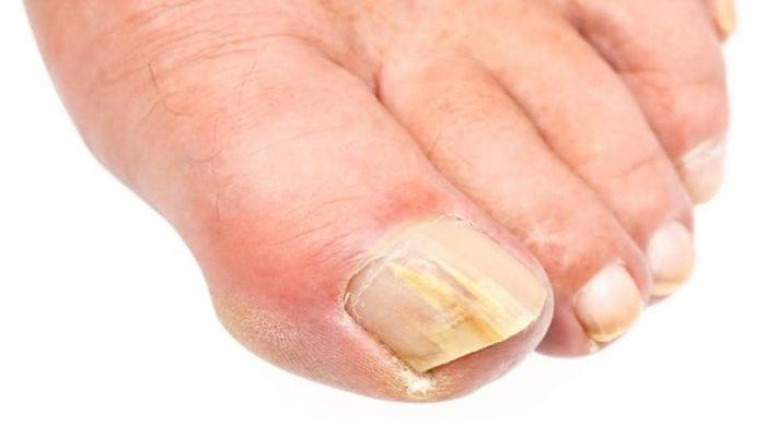 грибок ногтя большого пальца