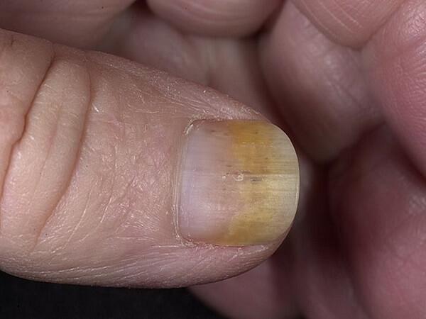 гиперкератоз ногтей