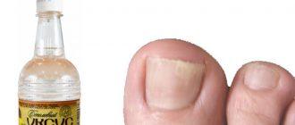лечение грибка на ногтях яблочным уксусом