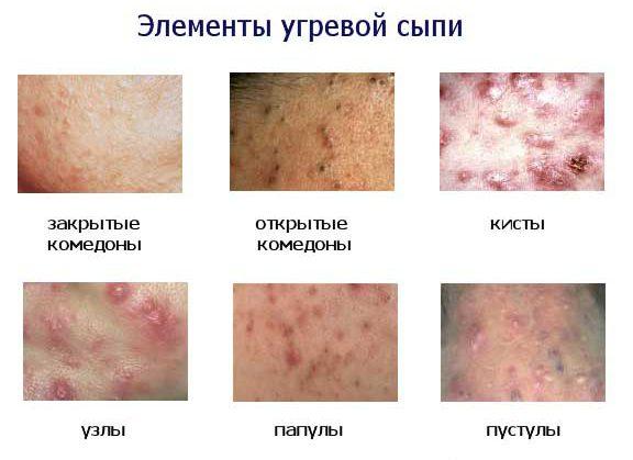 виды сыпи на лице